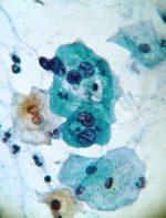 Preguntas y respuestas frecuentes sobre el HPV