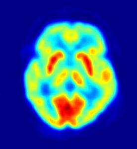Imagen de PET cerebral