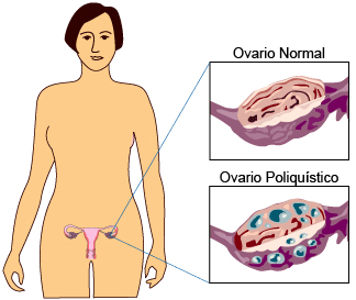Los ovarios poliquísticos son la causa más común de infertilidad femenina