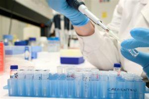 Un analisis de orina detecta la aterosclerosis