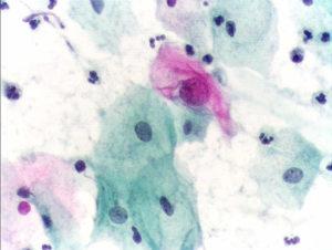Estudio de pap con células claramente anormales