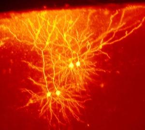Para hacer nuevos recuerdos las neuronas deben borrar los viejos