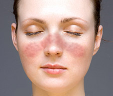 Eritema malar del Lupus. Imagen NIH
