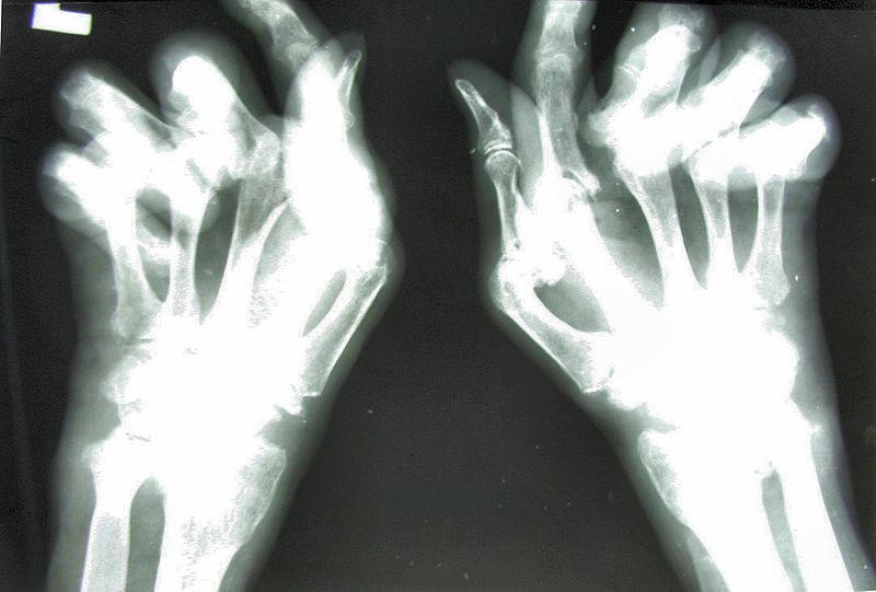 Desviación cubital típica de la fase avanzada de la artritis reumatoidea