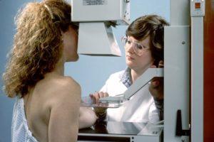 La mamografía digital expone a una radiación significativamente menor que la mamografía convencional