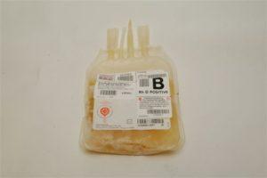 Las transfusiones de plasma no se usan adecuadamente