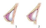 Lo que debes saber antes de realizarte una cirugía de aumento mamario.